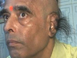 Radha Kant Bajpai Longest ear hair photo, Radha Kant Bajpai picture, World's longest ear hair image, Guinness world record 2010, Radha Kant Bajpai pics